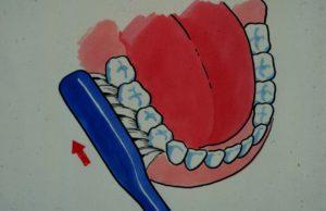 Pussing med tannbørste