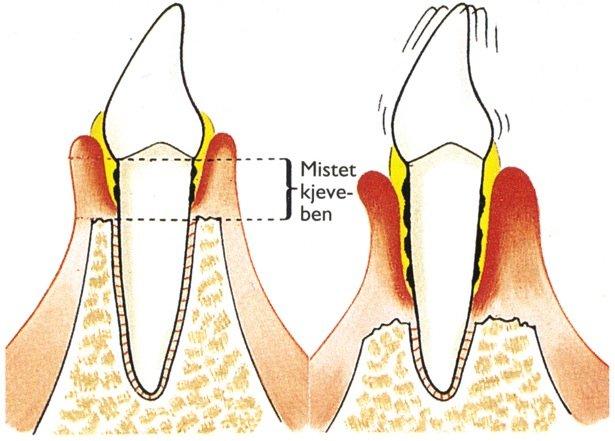 Periodontitt – tannløsningssykdom