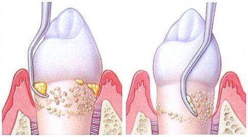 Calculus - fjerning av tannsten