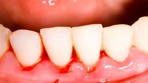 Blødende tannkjøtt – Gingivitt